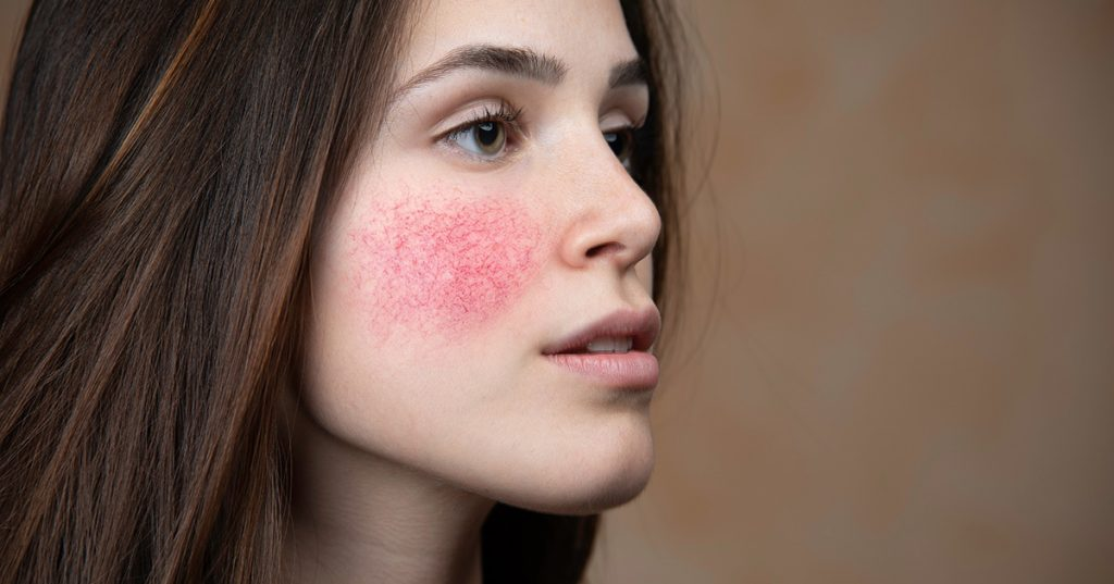 medical-therapy-options-for-rosacea