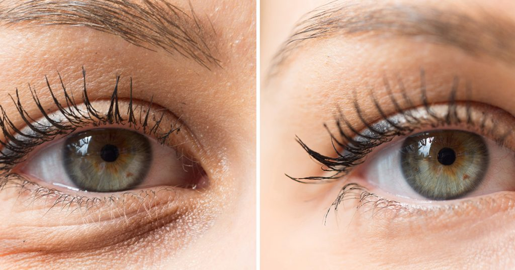Close up of before and after photos showing sagging lower eyelid and smooth